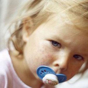 Những dấu hiệu và triệu chứng của bệnh rubella là gì?