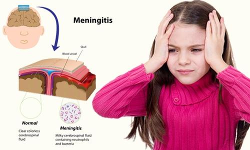 101 điều cần biết về bệnh viêm màng não mô cầu