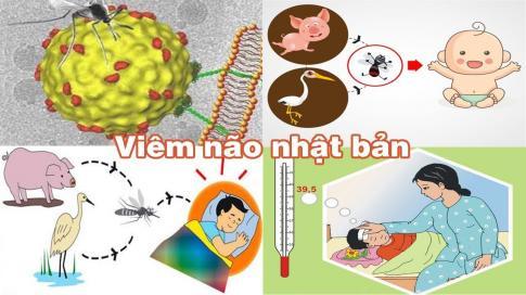 benh-viem-nao-nhat-ban